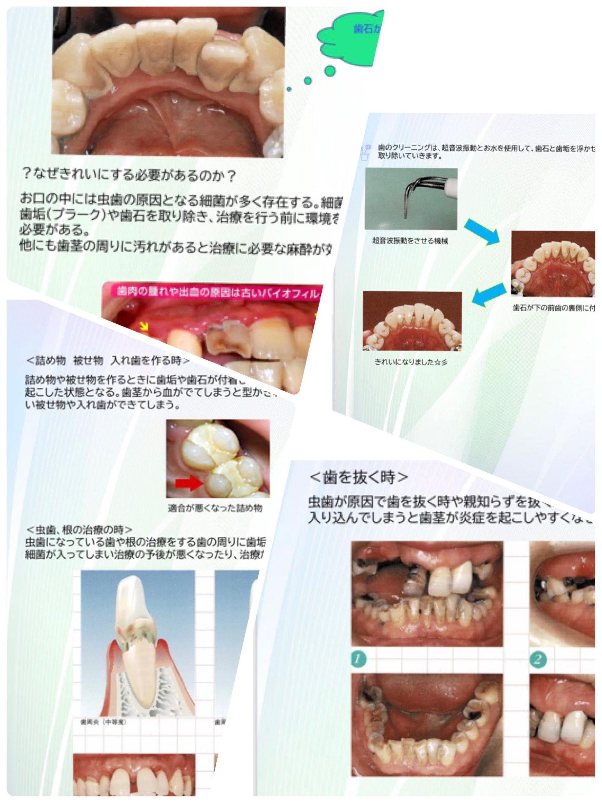 治療前に歯のクリーニングを!